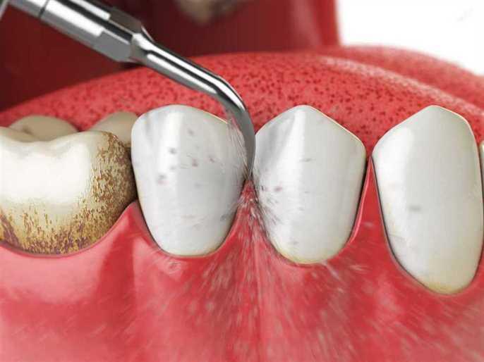 Calculus: Westside Dental